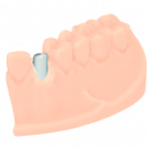 Individuelles Abutment
